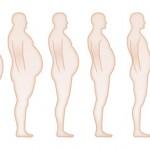 La Cirugía de la Obesidad, charla 26/02/13
