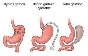 Cirugía bariátrica Palma