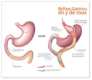 ¿Es el bypass gástrico la solución a la diabetes tipo 2?